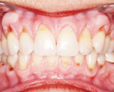 Mòn cổ chân răng là hiện tượng mất men răng ở vị trí cổ răng