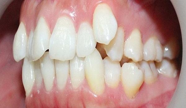 Bị bệnh nghiến răng do răng mọc lệch lạc