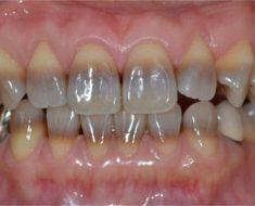 Răng bị nhiễm màu kháng sinh Tetracyline