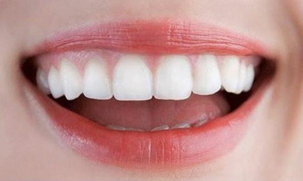 Bọc răng sứ chữa hô hiệu quả ở những trường hợp nhẹ