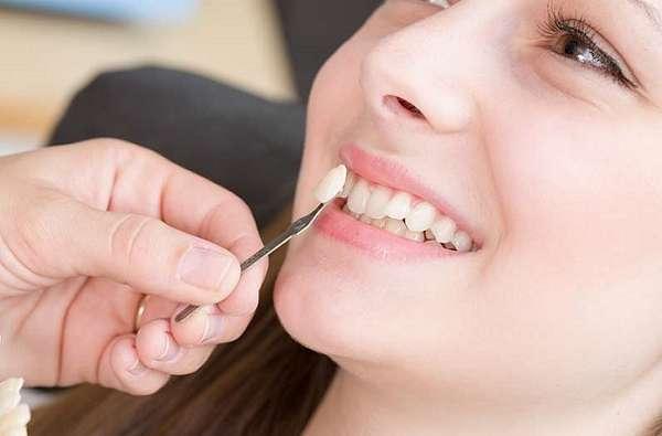 Cần lưu ý khi trồng răng khểnh để đảm bảo an toàn, hiệu quả
