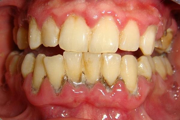 Những người bị viêm nha chu, sâu răng, mòn cổ chân răng không nên tẩy trắng răng