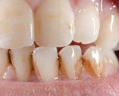 Vôi răng và mảng bám gây nên các bệnh lý về răng miệng