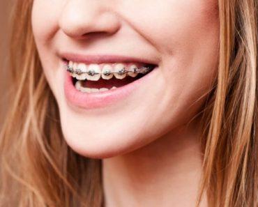 Bị hô nên niềng răng hay phẫu thuật để đạt hiệu quả tốt nhất?
