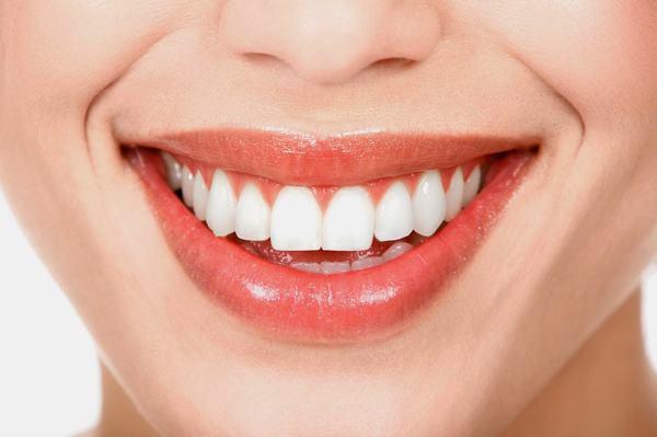 Bọc răng sứ giúp khắc phục tình trạng răng thưa
