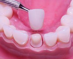 Bọc răng sứ 1 cái