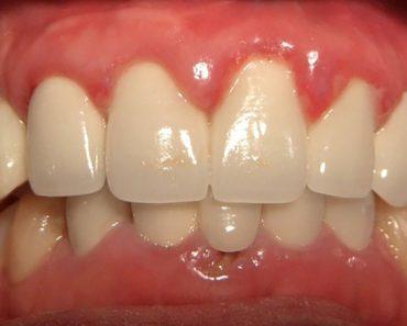 Bọc răng sứ bị viêm lợi có thể dẫn tới tình trạng viêm quanh răng và mất răng