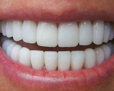 Phương pháp bọc răng sứ giúp thay đổi hình dáng thân răng