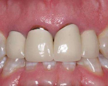Bọc răng sứ giá rẻ có thể làm đen viền răng