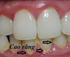 Cao răng là vấn đề nhiều người đang gặp phải