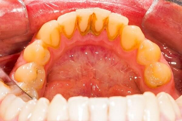 Cạo vôi răng quá nhiều sẽ gây viêm nướu, lâu ngày dẫn đến bệnh nha chu