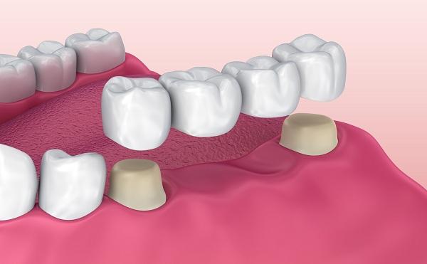 Cầu răng sứ được sử dụng để phục hình răng đã mất