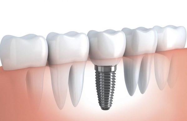 Cấy ghép răng Implant là biện pháp khắc phục răng đã mất hiệu quả ở người già