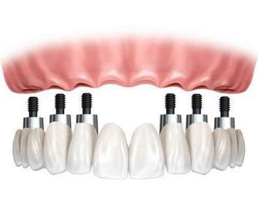 Cấy 6 implant cho toàn hàm (All on 6)