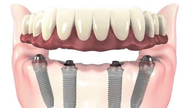 Cấy 4 implant cho toàn hàm răng (All on 4)
