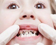 Có cách nào điều trị hiệu quả cho trẻ em bị sâu răng không?