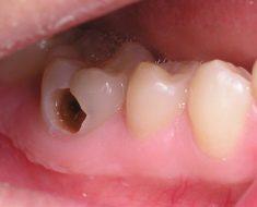 Những cách chữa sâu răng hiệu quả tại nhà