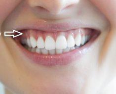 Cười hở lợi làm khuôn mặt kém duyên, gây khó khăn trong giao tiếp