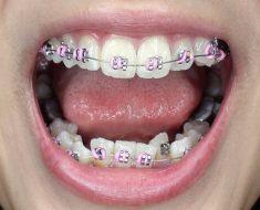 Cảm giác đau sau khi niềng răng là điều thường gặp