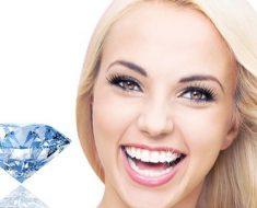 Đính đá kim cương cho răng – Phương pháp thẩm mỹ nha khoa sành điệu