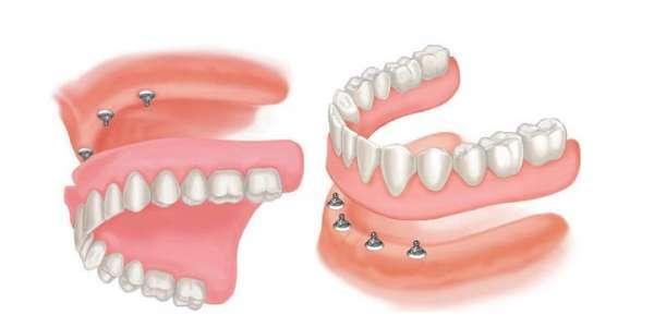 Hàm giả tháo lắp toàn hàm trên 2 implant