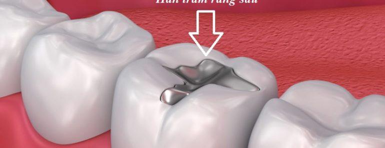 Trám răng là gì?