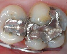 Trám răng giữ được bao lâu phụ thộc vào tình trạng răng và vật liệu trám