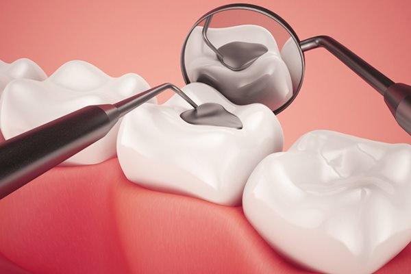 Hàn trám răng chữa sâu răng cho trẻ