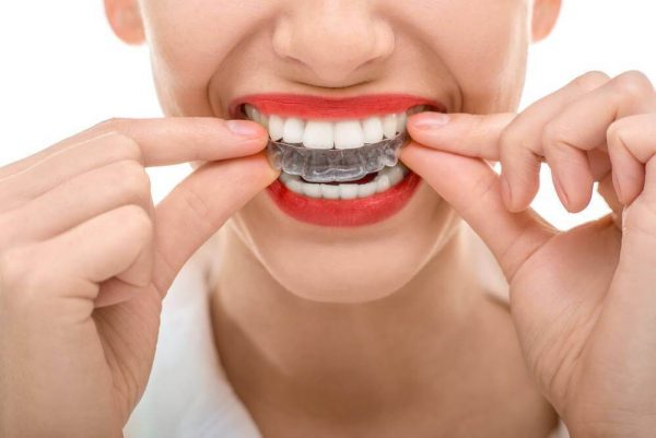 Khay niềng răng trong suốt Invisalign