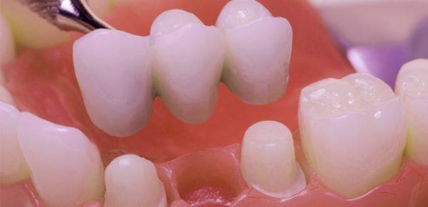 Làm cầu răng sứ là giải pháp tạm thời thay thế trồng răng impant trong thời kỳ mang thai