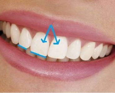 Xu hướng làm răng thỏ phổ biến hiện nay