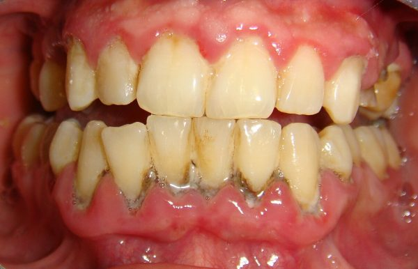 Lão hóa răng ở người già thường kèm theo bệnh nha chu, tụt lợi, tụt nướu,…