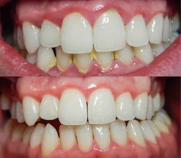 Kết quả lấy cao răng bằng công nghệ Canvitrol BP 8.0