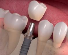 Phương pháp cắm Implant