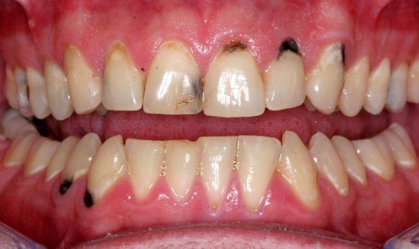 Bệnh mòn cổ chân răng gây nhiều biến chứng nguy hiểm