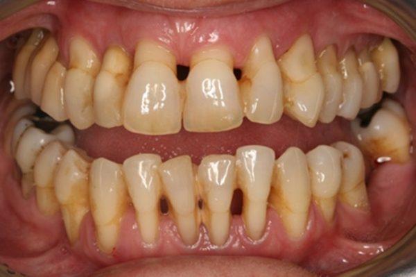 Bệnh mòn cổ chân răng tạo nên những rãnh sâu, lõm hình chữ V