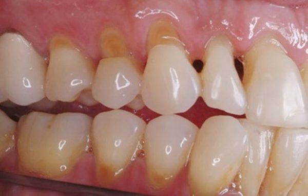 Bệnh mòn cổ chân răng do nhiều nguyên nhân tạo thành