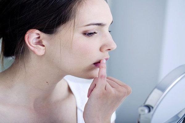 Nguyên nhân gây bệnh nhiệt miệng là do đâu?