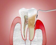 Bệnh nha chu là một bệnh nhiễm trùng gây phá hủy mô nâng đỡ quanh răng