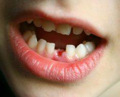 Nhổ răng sữa quá sớm sẽ gây nhiều hậu quả cho trẻ