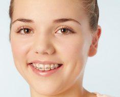 Niềng răng hô có đau không? là thắc mắc của rất nhiều người