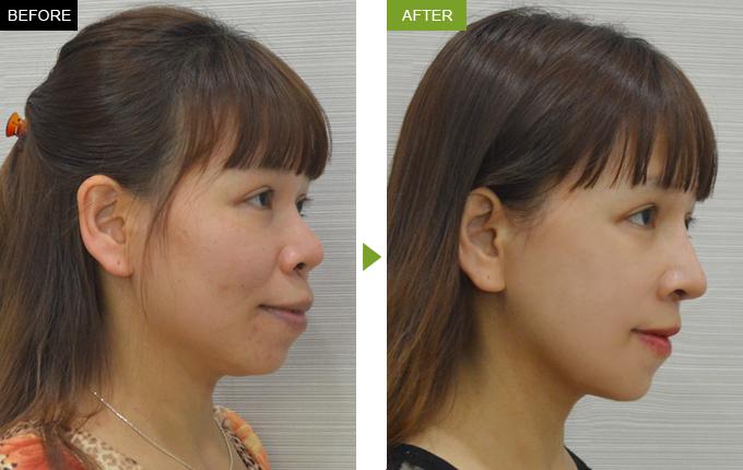 Kết quả trước và sau khi niềng răng hô