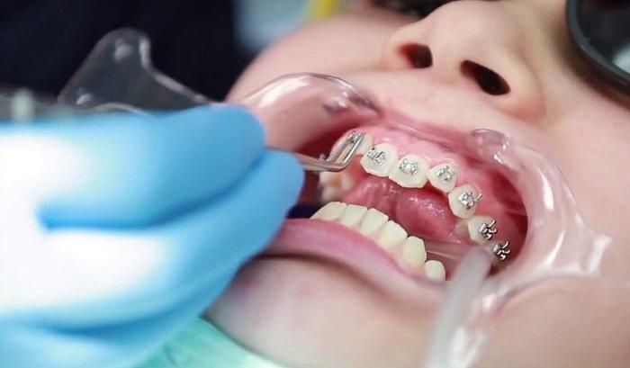Niềng răng mắc cài sẽ không gây nguy hiểm nếu bạn lựa chọn nha khoa uy tín
