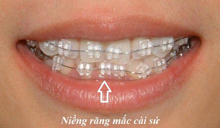 Hình ảnh khách hàng sử dụng niềng răng mắc cài sứ
