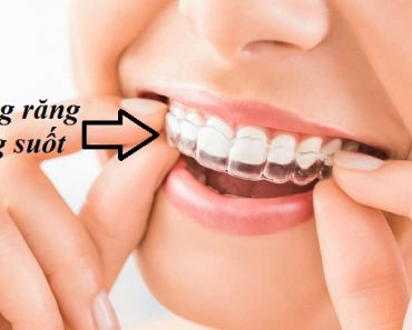 Niềng răng không mắc cài(hay còn gọi là niềng răng trong suốt)