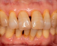 Các mảng bám lâu ngày trên răng gây ra bệnh viêm nha chu