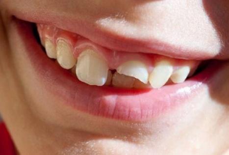 Răng cửa bị gãy đôi ảnh hưởng xấu tới thẩm mỹ