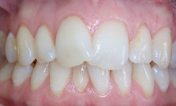 Răng cửa mọc đè lên nhau là một dạng sai lệch khớp cắn rất phổ biến