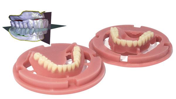 Khuôn hàm răng giả tháo lắp