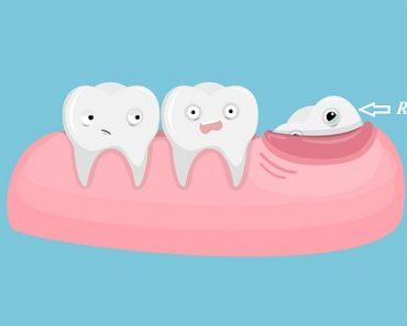 Răng khôn thường mọc ở người trưởng thành từ 17 – 25 tuổi